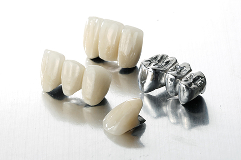 Practical Applications of Nickel-Based Dental Casting Alloy